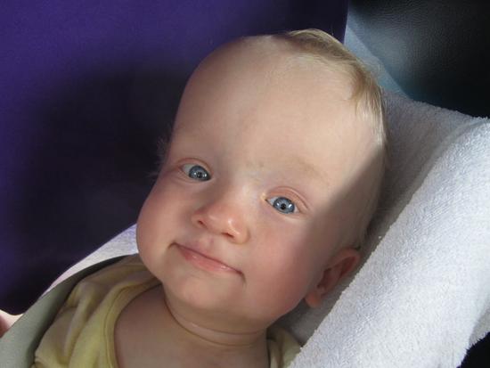 Macrocephaly in infants
