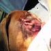 Entropion Eye corrective surgery