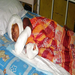 Mohammed Arman - 2 year old Burn Victim. The story: http://goo.gl/TSSV9