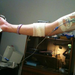 This is a picc line, it is a more permanent IV. This is just a normal part of life when you have Cystic Fibrosis