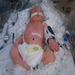 Joshua after surgery. 4 days old.