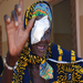 Nieba, after having trachoma surgery in a village in Mali