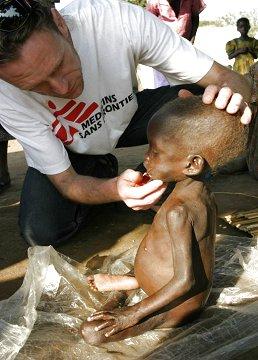 Size 550x415 malnutrition