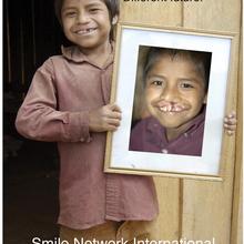 Smile Network Fundraiser - Ann Lori