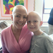 ALOPECIA-PALOOZA a summer camp for CAP Kids (Children's Alopecia Project) and their families with a change of focus from growing hair to growing self-esteem!